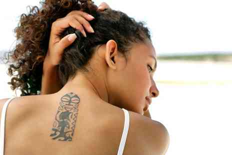 Chic Hair & Beauty - Three Laser Tattoo Removal Sessions on a Choice of Area - Save 0%