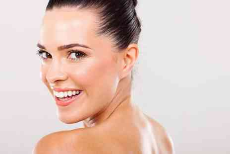 NW1 Dental Care - One Session of Teeth Whitening - Save 72%