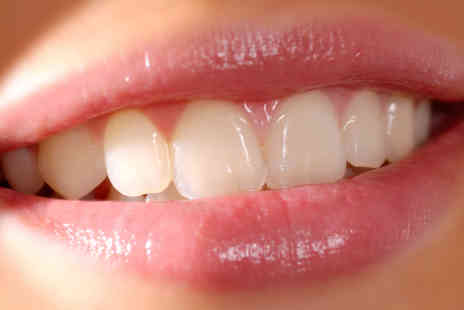 Harley Street Treatments - One Hour Laser Teeth Whiting Treatment - Save 74%