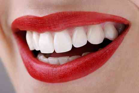 Smileright - Teeth Whitening, Check Up and Two X Rays  - Save 77%