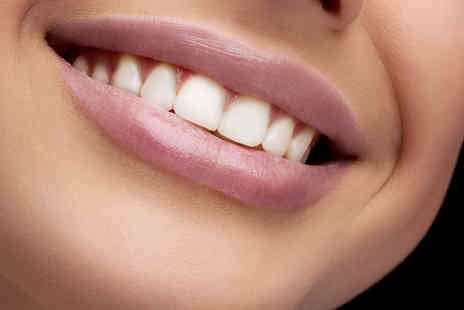 Covent Garden Dental Spa - Diamond Sparkle Teeth Polish and Clean for One - Save 45%