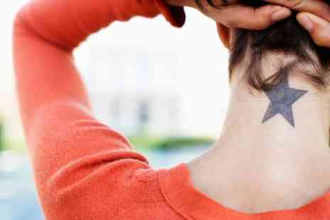 Atelier M London - One or Three Sessions of Laser Tattoo Removal  - Save 0%
