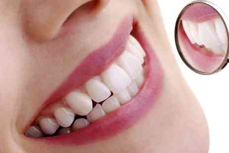 Hatfield Dental Care - Teeth Whitening Plus Scale and Polish - Save 60%