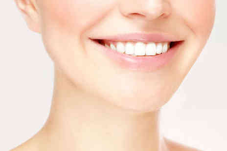 The White House - Full or Express Teeth Whitening Treatment - Save 0%