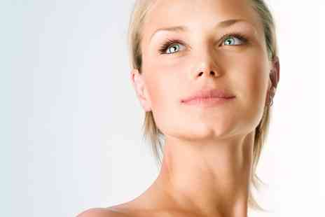 Fresh Beauty Clinic - IPL Thread Vein Treatment on Two or Four Areas  - Save 0%
