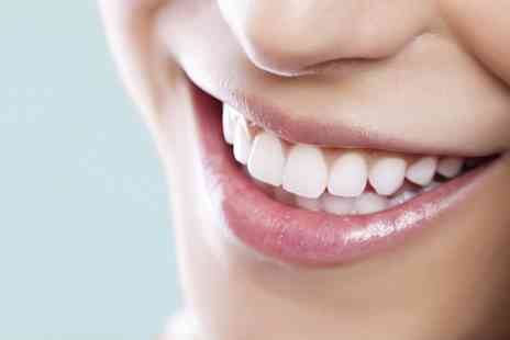 Dentally Exclusive - Six Month Clear Fixed Braces On One or Both Arches  - Save 50%