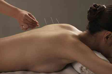 Chinese medicine yard - 30 Minute Session of Acupuncture or Cupping  - Save 0%