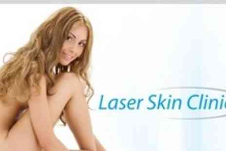 Laser Skin Clinic - Three Sessions of Laser Thread Vein Removal - Save 74%