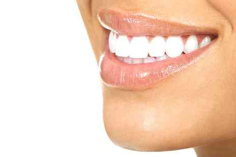 Bright White Smiles - Teeth Whitening Session - Save 75%