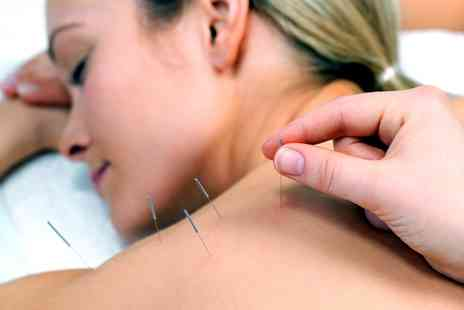 Naturcare - 30 Minutes of Acupuncture with Massage, Choice of Massage or 60 Minutes of Acupuncture - Save 69%