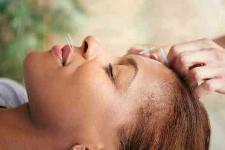 Aneugene Health Centre - Acupuncture and Reflexology Session  - Save 0%