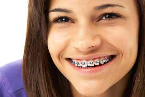 Chelsea Dental Spa - Six Month Smiles Braces for One or Both Arches with Six Tightenings  - Save 0%