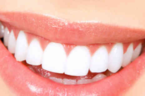 Puresmile Dental Care - Two 1 Hour Teeth whitening sessions, including a dental check up - Save 90%