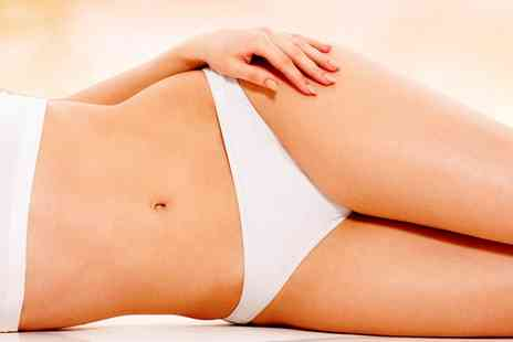 Sparkle - Cryogenic Lipolysis on One or Two Areas - Save 0%