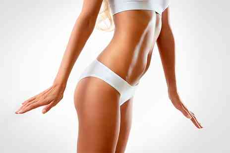 Energie Fitness For Women - Three or Six Sessions of LED Lipolysis - Save 0%