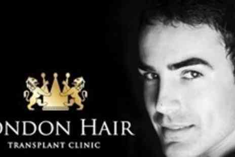 London Hair Transplant Clinic - Follicular Unit Transplant Treatment For Up to Two Thousand Hairs - Save 65%