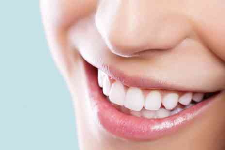 The White House Belfast - Dental Whitening Top Up or Full One Hour In Clinic Treatment  - Save 0%