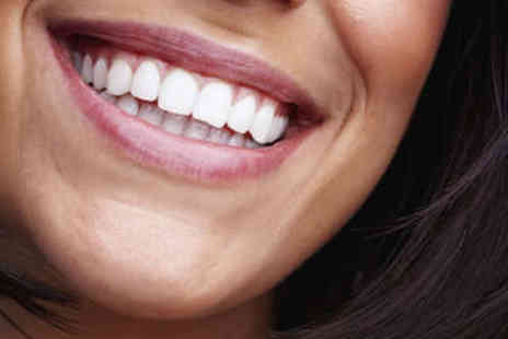 Bright White Smiles - Hour long Laser Teeth Whitening Treatment - Save 75%