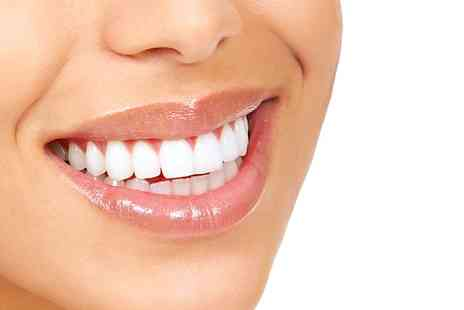 Circus House Dental and Implant centre - Fastbraces For Upper and Lower Arches - Save 63%