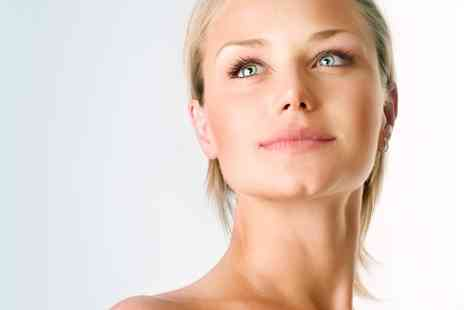 Lynda V. Price - One or Three Sessions of IPL Thread Vein Treatment - Save 76%
