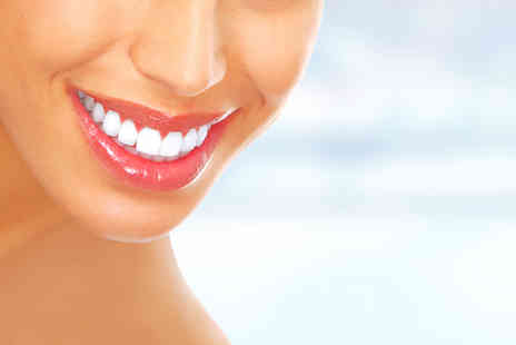 Chelsea Dental Spa - Clear Six Month Smiles brace on one arch or both arches - Save 62%