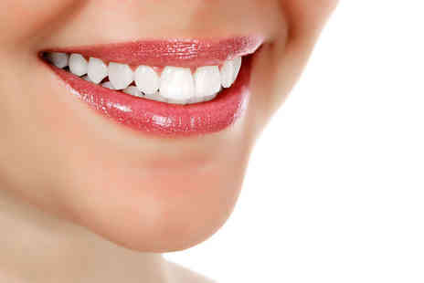 Bright White Smiles - Laser teeth whitening treatment with a full consultation - Save 78%