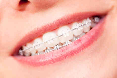 iDental - Set of upper or lower clear braces  - Save 70%