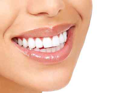 Bright White Smiles - Teeth Whitening - Save 68%