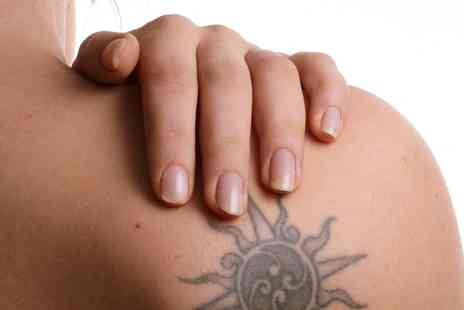 Reading Beauty Salon - Laser Tattoo Removal: Two or Four Sessions - Save 0%