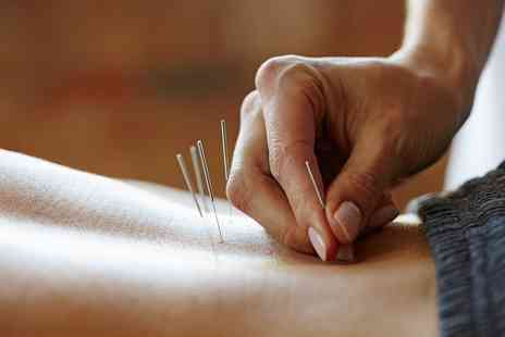 Tianyi Clinic - Choice of Acupuncture Treatment with Optional Moxibustion Treatment and Massage - Save 71%
