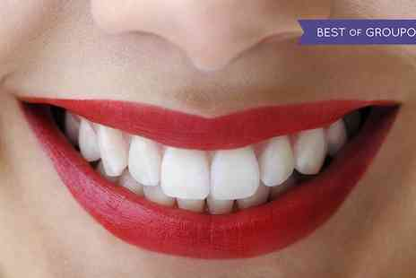 Glamour Smile Clinic - Teeth Whitening Treatment for One or Two - Save 84%