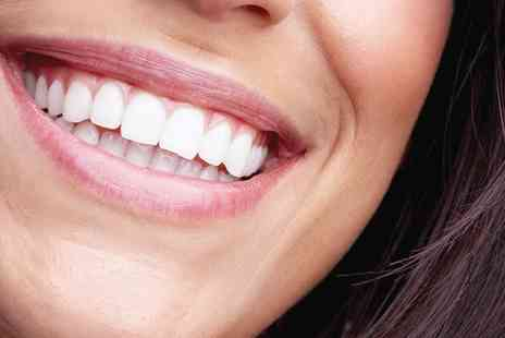 Thorndike Dental Practice - In House Laser Teeth Whitening with Optional Scale and Air Flow Polish - Save 82%
