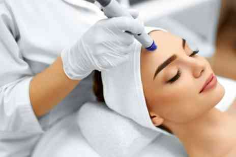 Through The Looking Glass - One, Three or Five Sessions of Microdermabrasion - Save 71%