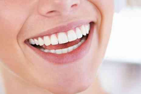 Queensway Dental Practice - Zoom Laser Teeth Whitening - Save 0%