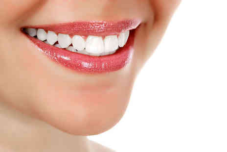 Chelsea Dental Spa - Clear Six Month Smiles brace on one arch or both arches with a removable retainer - Save 68%