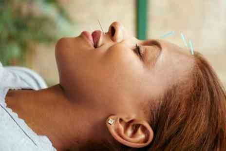 Physiotherapy Sheffield Sports Injuries Clinic - One Hour Cosmetic Acupuncture Facial - Save 62%
