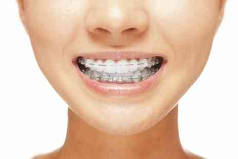 All Saints Dental Clinic - Clear Braces for One or Two Arches - Save 70%