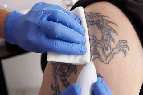 Queen Mob - Three Sessions of Laser Tattoo Removal on Small, Medium or Large Area - Save 0%