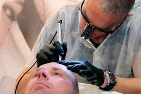 SMP Manchester - Scalp Micropigmentation on Small, Medium or Large Area - Save 26%