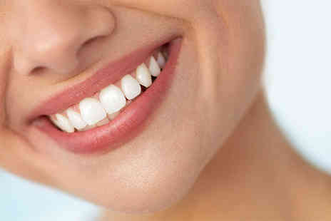 Bright Smiles Dental Clinic - Clear braces on one arch with teeth whitening take home kit - Save 58%