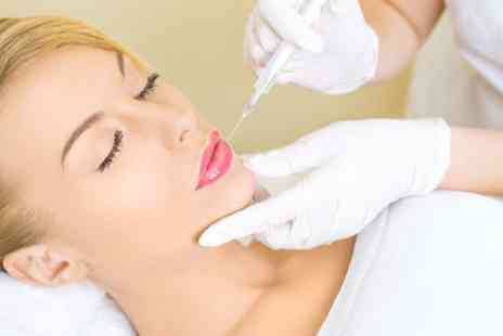 Aesthetics Refined Clinics - Dermal Filler on Choice of Area - Save 28%