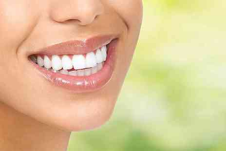 Bright Smiles Dental Clinic - Two veneers with any necessary x rays and trays or include four veneers and a home teeth whitening kit - Save 70%