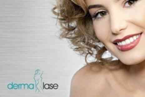Dermalase - Laser Teeth Whitening With Consultation - Save 50%