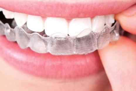 Coco Dental  Colindale - Clear Braces for Upper or Lower Arch - Save 50%