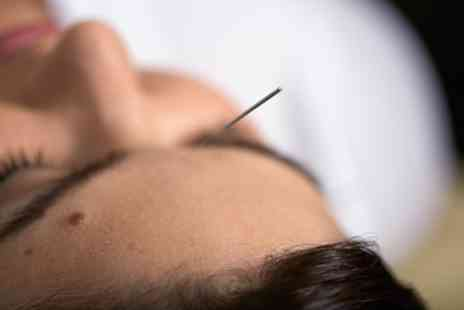 CT Centre - One or Three Sessions of Acupuncture, or Cosmetic Acupuncture and Facial Massage - Save 40%