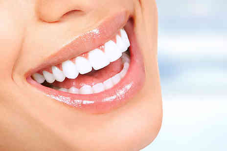 VidaDent Dental Practice - Clear braces on one arch or both arches - Save 60%