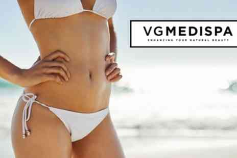VGmedispa - Three or Six Sessions of Brazilian or Hollywood Laser Hair Removal - Save 91%