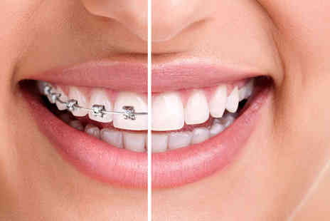 VidaDent Dental Practice - Metal braces on one arch with teeth whitening and a plastic retainer or both arches - Save 80%