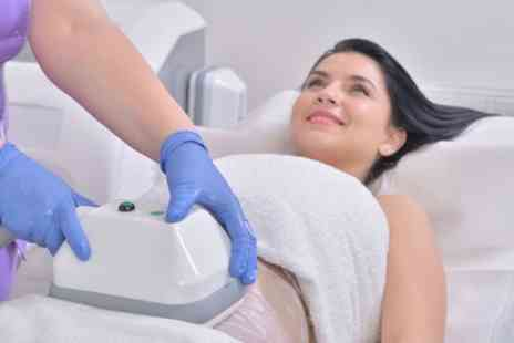 WPR Beauty Spa Cosmetic - 3D Cryogenic Lipolysis on One or Two Areas - Save 63%