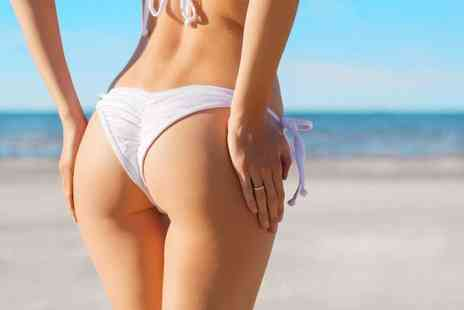 VG Medispa - One session of Alma Laser Brazilian Bum Lift treatment - Save 96%